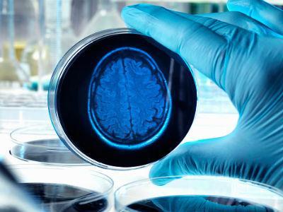 Awakening from Alzheimer's viable