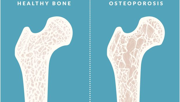 taking control over health issue and osteoporosis Webmd: learn about osteoporosis, its diagnosis, treatment options, medication and get members' support.